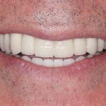Caso Clínico Botello Implantes-Post