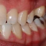 Caso Clínico Botello Ortodoncia Post  Drch