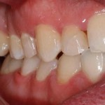 Caso Clínico Botello Ortodoncia Post Izq