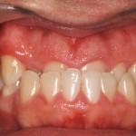 Caso Clínico Botello Ortodoncia Previo  Central