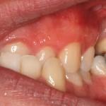 Caso Clínico Botello Ortodoncia Previo drch